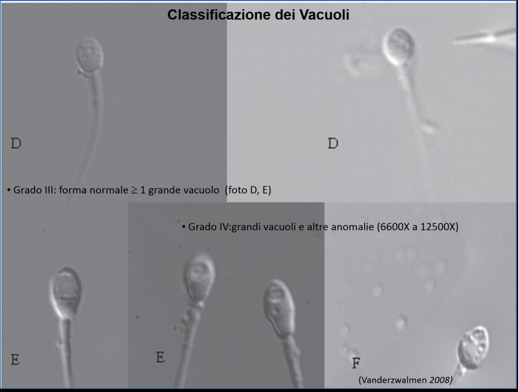 Classificazione dei Vacuoli_1